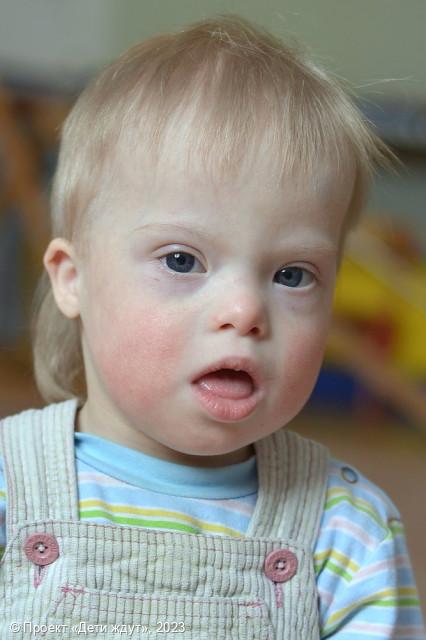 фото детей с синдромом гидроцефалией